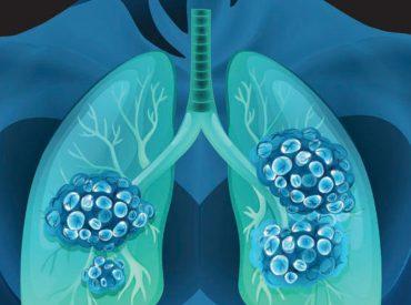 lung-nodule